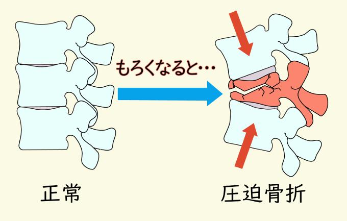 腰椎 圧迫 骨折 圧迫骨折時の座り方とやってはいけないこと、痛み軽減のために出来る...