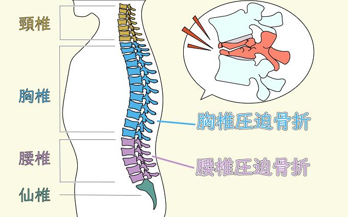 腰椎圧迫骨折と胸椎圧迫骨折の場所