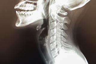 頚椎圧迫骨折